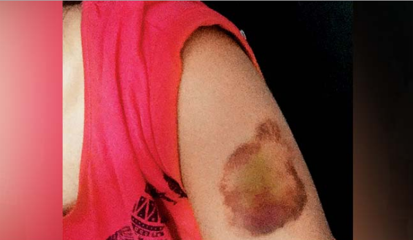 Pune girl beaten (Pic Credit Mid-day)