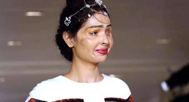 Reshma Quereshi, acid attack survivor
