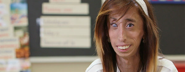 Lizzie Velasquez Shares Moving Message About Online Bullying