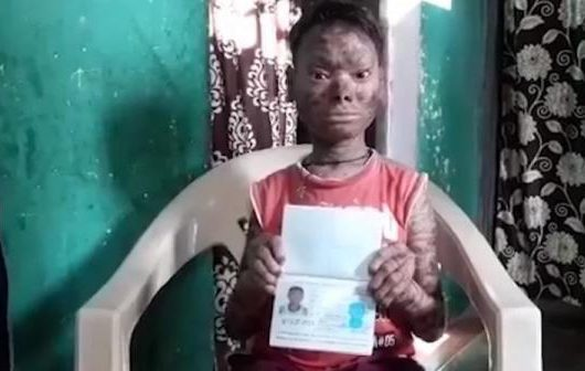 Shalini from Bhopal suffering from skin disease