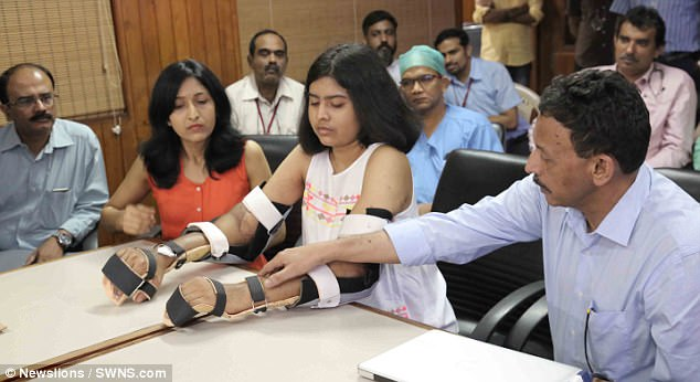 Shreya Siddanagowda - first to undergo double limb transplant