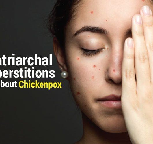 Chivkenpox and the patriarchal and religious superstitions about it